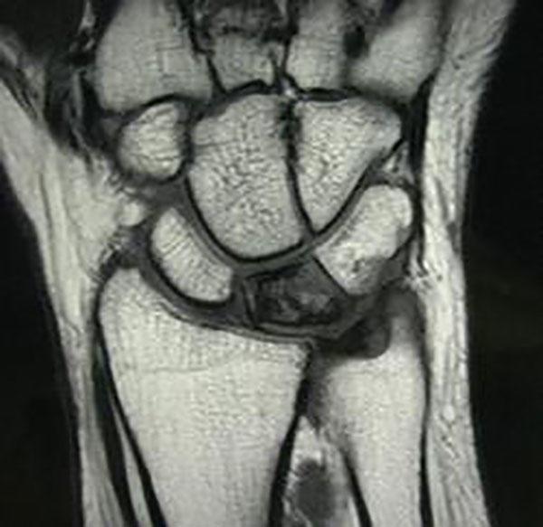 Где сделать мрт лучезапястного сустава закрытые переломы и ложные суставы костей