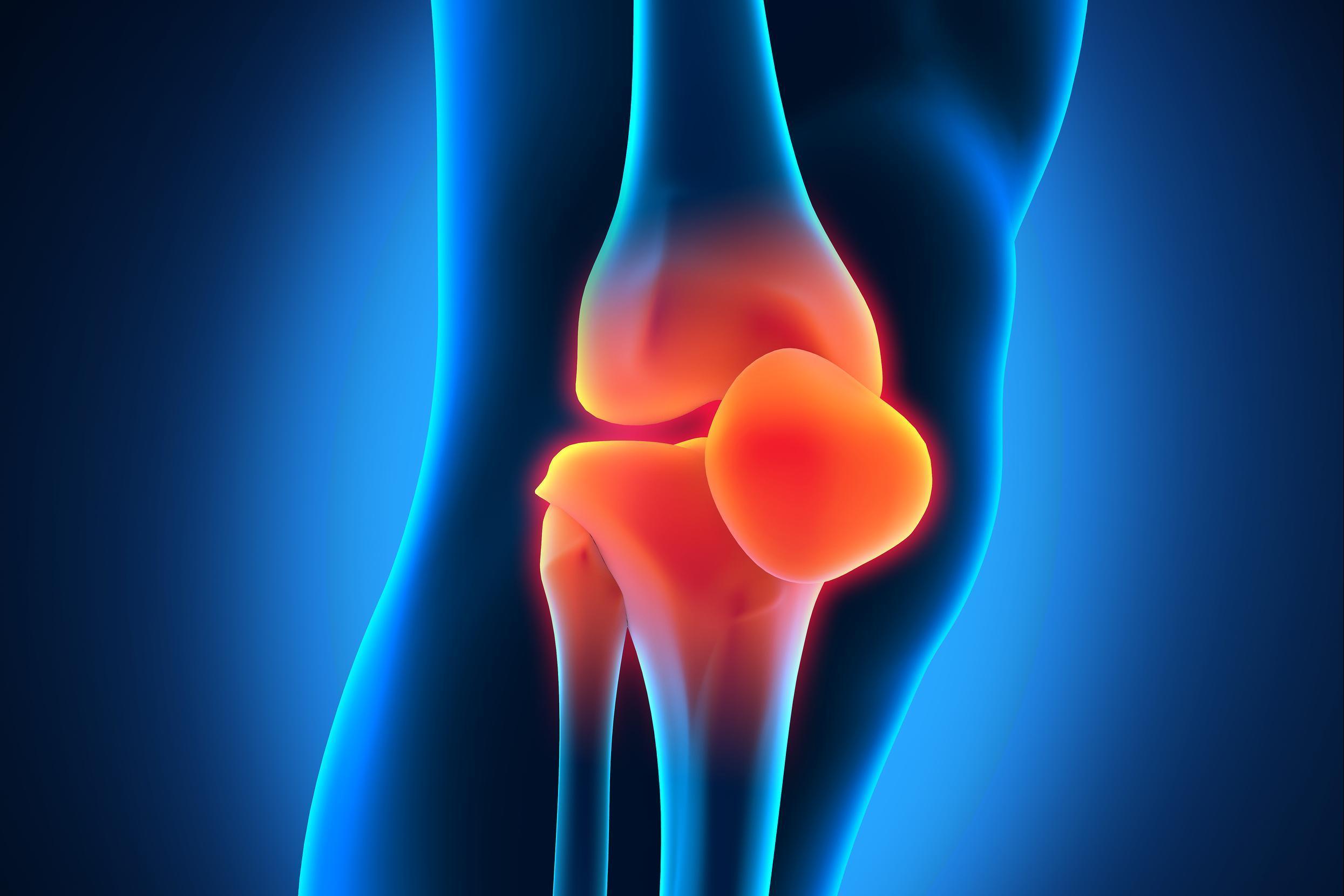 Артроз коленного сустава на МРТ